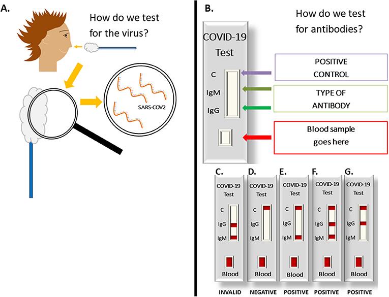 איור 3 - כיצד פועלת בדיקת וירוס קורונה? (A) כיצד אנו בודקים אם הווירוס הזה נמצא אצל חולה? דגימת נוזלים קטנה נאספת מאף החולה באמצעות מקל עם צמר גפן בקצהו (מָטוֹש), ואז צוות רפואי מחפש את החומר הגנטי של SARS-CoV-2 בדגימה.