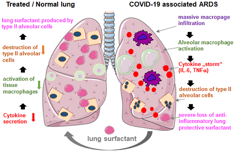 Frontiers | Lung Surfactant for Pulmonary Barrier Restoration in Patients With COVID-19 Pneumonia | Medicine