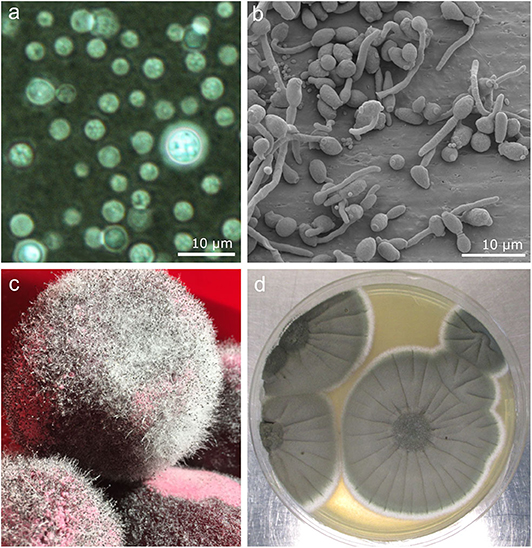 Figure 1 - Images of fungi that infect humans.