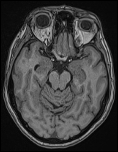 Figure 1 - An MRI image of a person's brain.