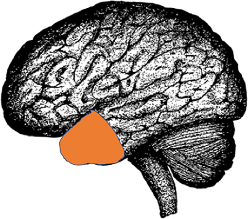 Figure 2 - A picture of the brain showing a part called the temporal lobe (orange) that can be removed to treat seizures.