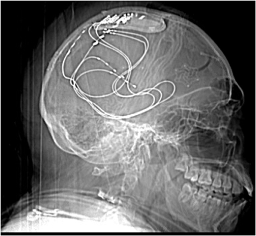 Figure 3 - An X-ray of a person's head showing a device to treat seizures.