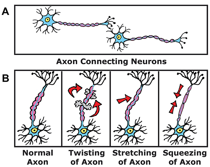 Figure 1 - (A) Your brain's 60 billion nerve cells connect through long fibers called axons.