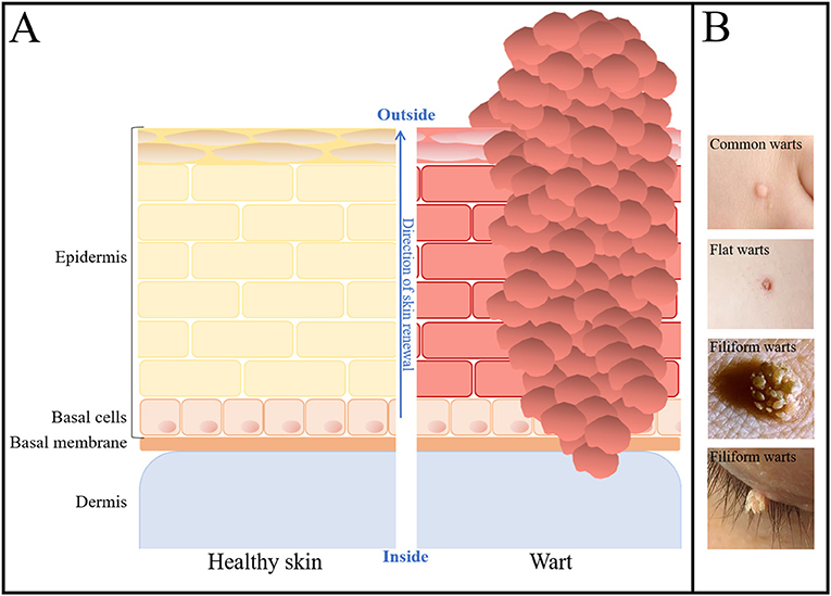 Figure 1 - Microscopic scheme of healthy skin and warts.
