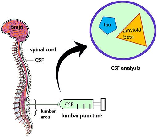 Figure 1 - Getting and analyzing CSF.