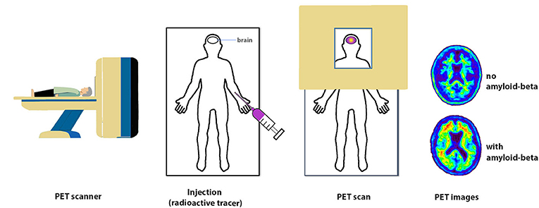Figure 2 - PET imaging.