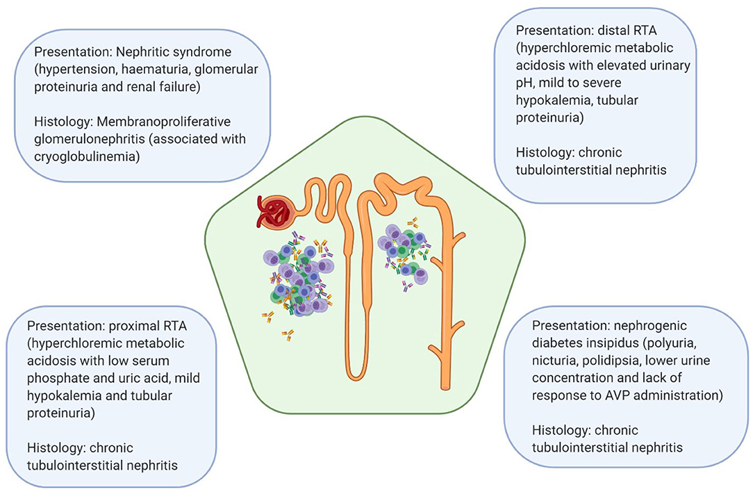 Frontiers Biomarkers And Diagnostic Testing For Renal Disease In Sjogren S Syndrome Immunology
