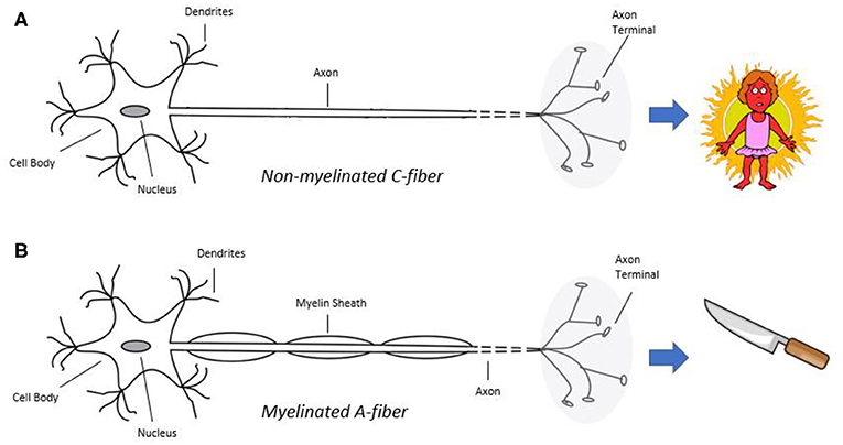 Figure 1 - (A) Non-myelinated C-fibers transmit dull pain, for example, the type of pain you feel when you are sunburned.