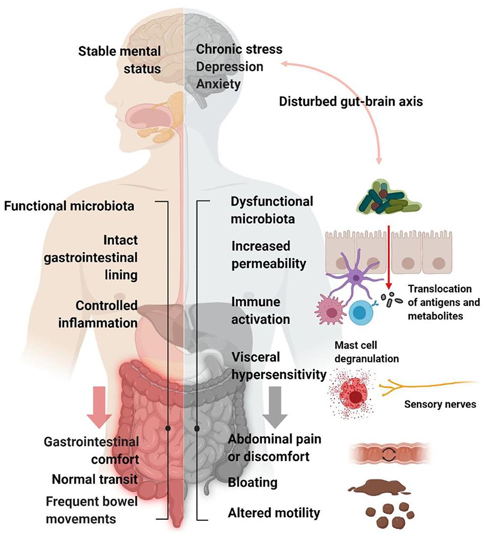 dysbiosis in functional bowel disorders)