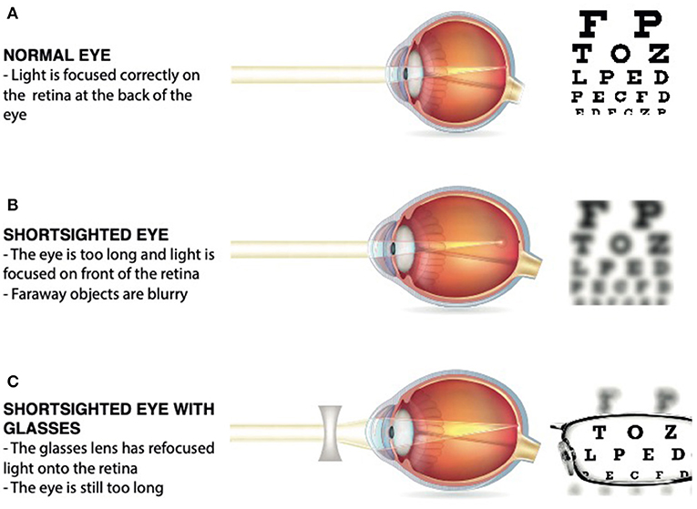 Figure 1 - (A) In a normal eye, the light is focused correctly on the retina.