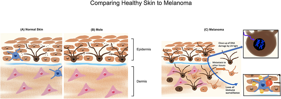 "Figure 1 - (A) Normal melanocytes (dark brown cells with ""arms"") produce a pigment called melanin (dark brown dots), which is taken up by neighboring skin cells (light brown)."