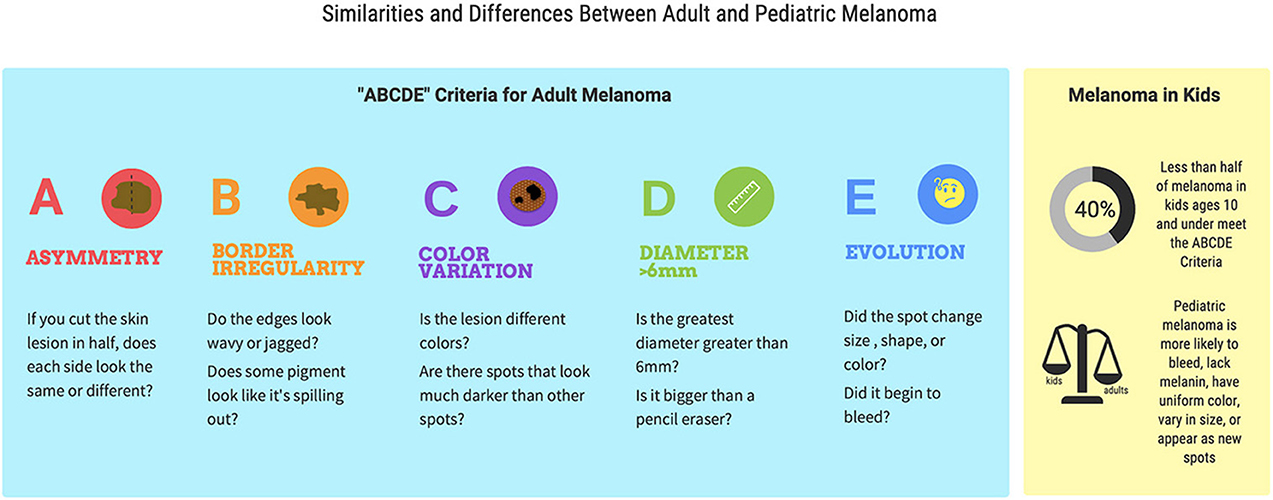 "Figure 2 - The ""ABCDE"" criteria help doctors to diagnose melanoma in adults."