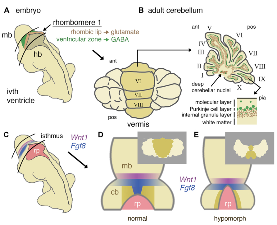 Frontiers | Congenital hypoplasia of the cerebellum: developmental ...