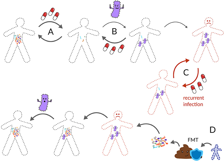 Figure 3 - (A) Usually, the gut microbiota can recover from antibiotics.