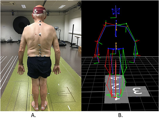 Figure 2 - (A) The placement of reflective markers on the body of a study participant.