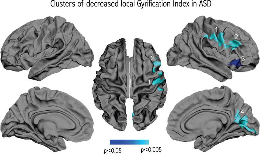 In Autism Brain Shows Unusual Thinning >> Frontiers Decreased Frontal Gyrification Correlates With Altered
