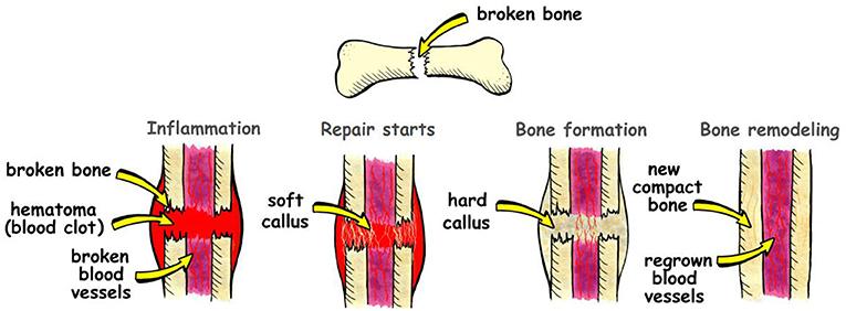 Figure 3 - Bone healing happens in four steps.