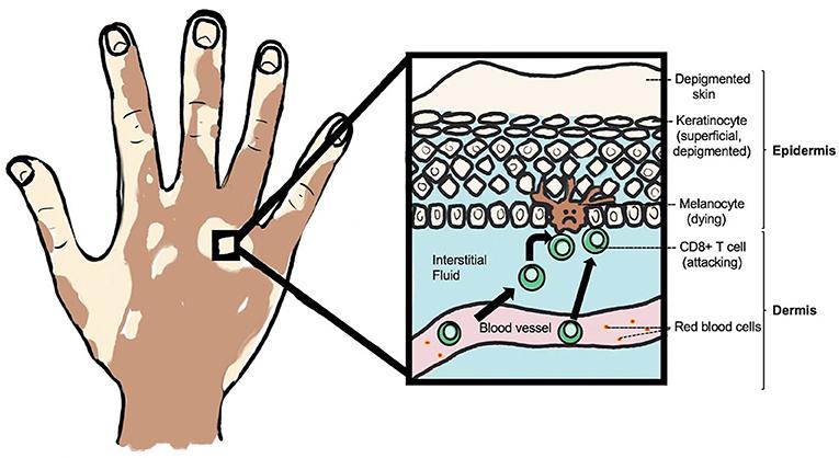 Figure 2 - Depigmented skin in a person with vitiligo.