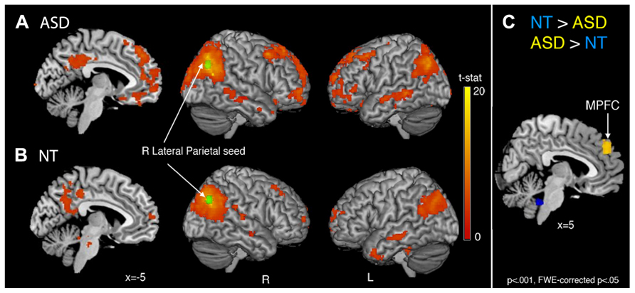 Why Autism Is Different In Brains Of >> Frontiers Intrinsic Functional Network Organization In High
