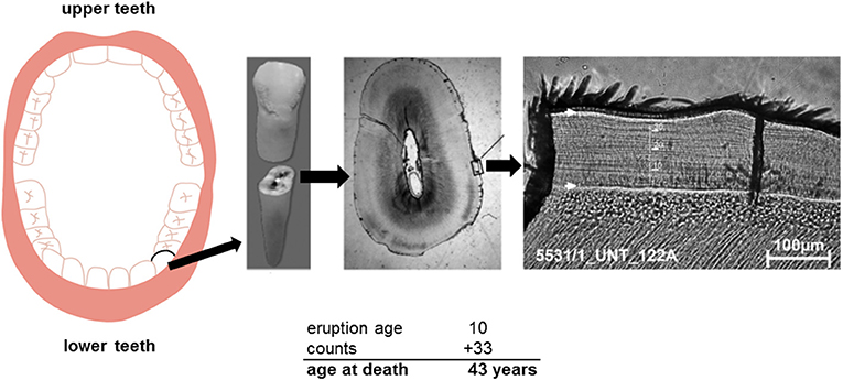 Figure 2 - Teeth can be used to determine a person's age.