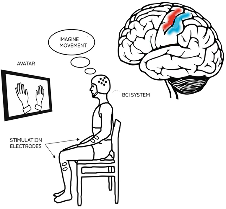 Figure 1 - In BCI therapy, stroke patients wear an electrode cap and view a monitor where an image, such as moving hands, helps them relearn how to move.