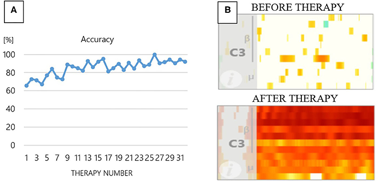 Figure 2 - (A) BCI accuracy from therapy sessions 1 through 31 for one patient.