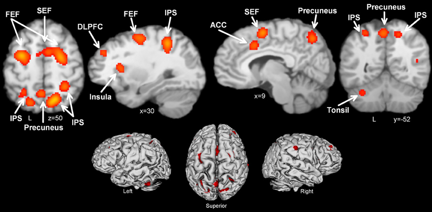 On the role of the anterior prefrontal cortex in cognitive ...