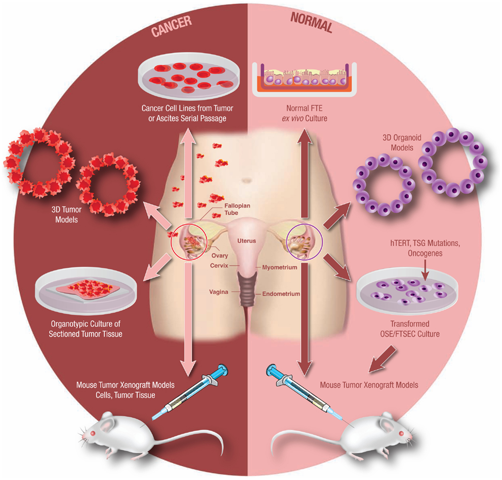 Frontiers Modeling High Grade Serous Carcinoma How Converging Insights Into Pathogenesis And Genetics Are Driving Better Experimental Platforms Oncology