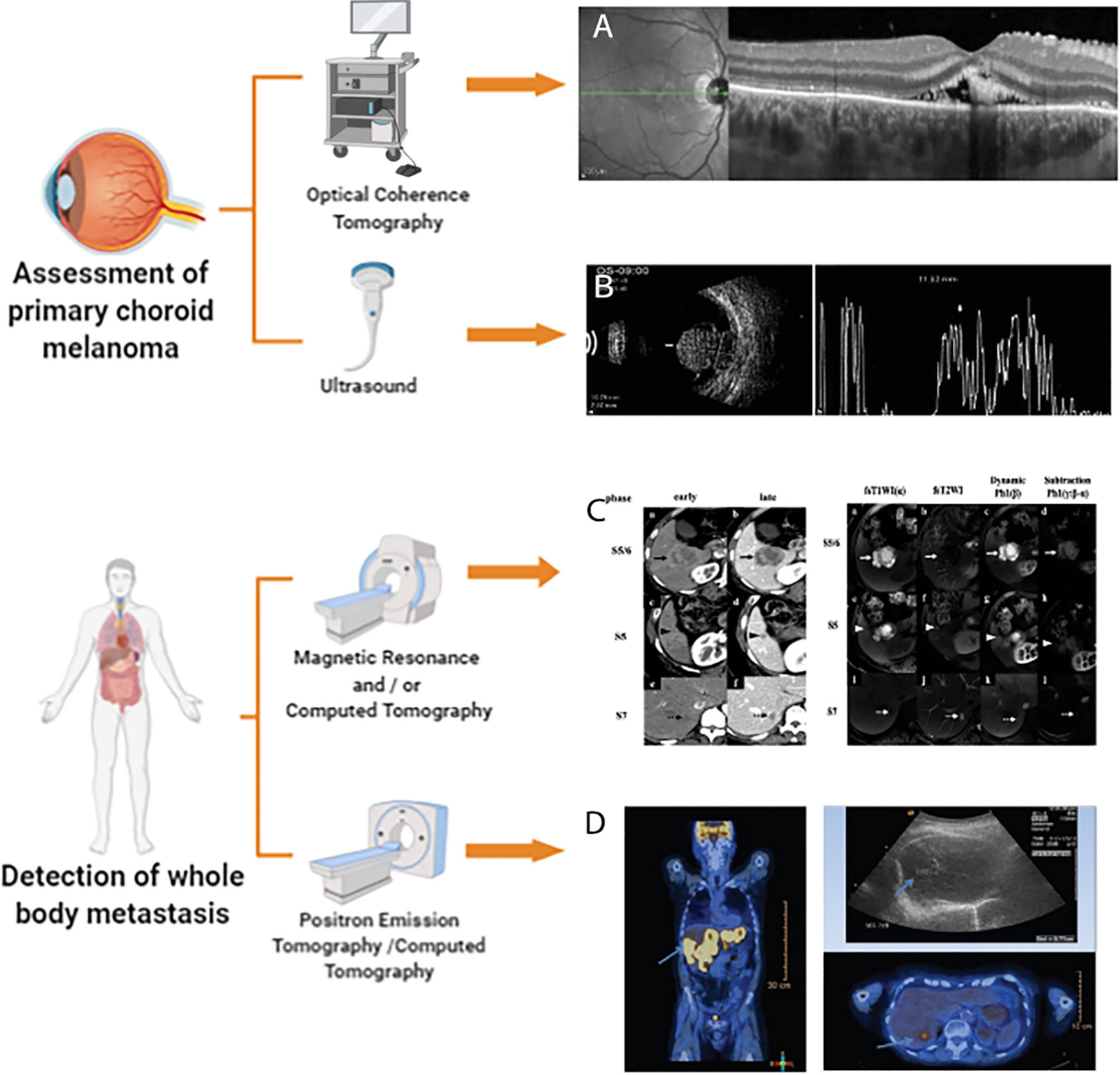 Frontiers Application Of Multimodal And Molecular Imaging Techniques In The Detection Of Choroidal Melanomas Oncology