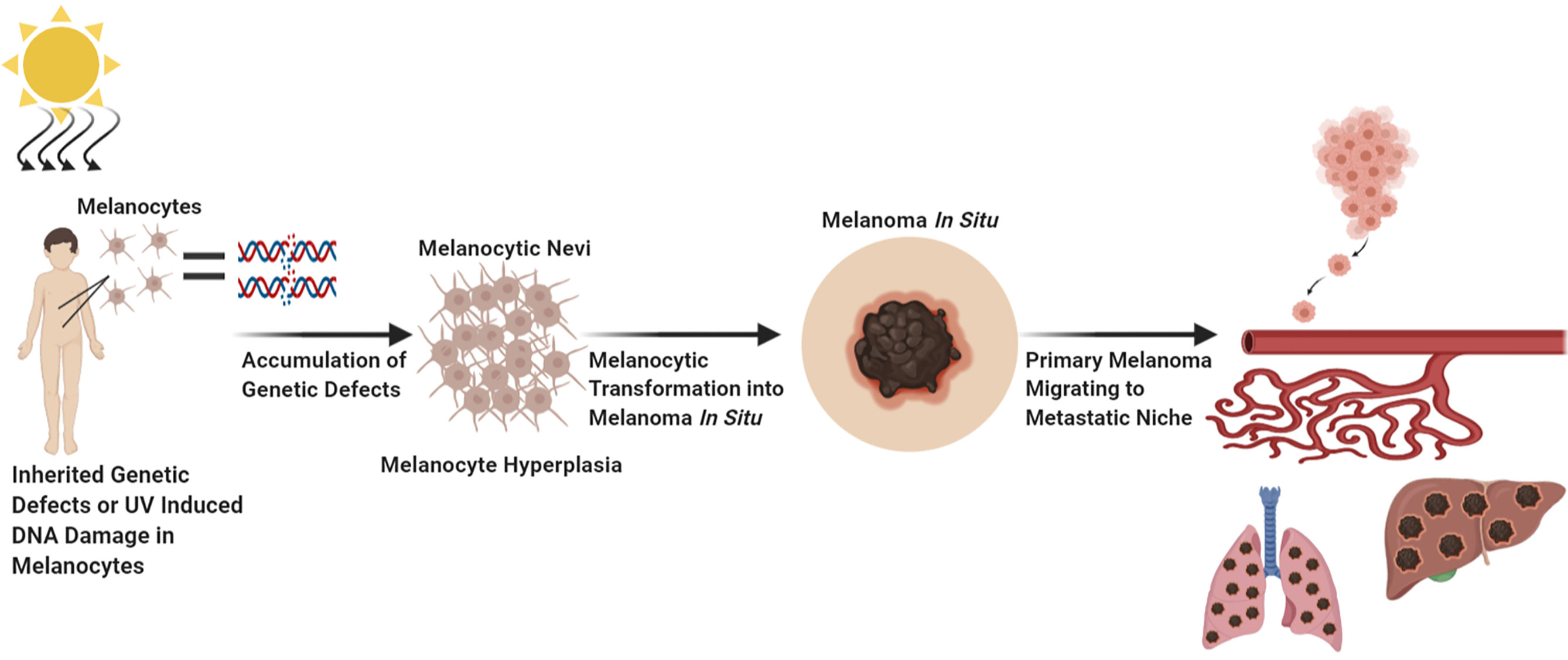 Melanoma look does like what a Slide show: