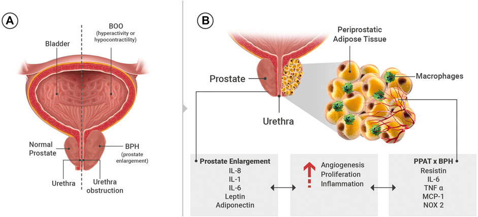 Fibrosis Prosztate Vélemények