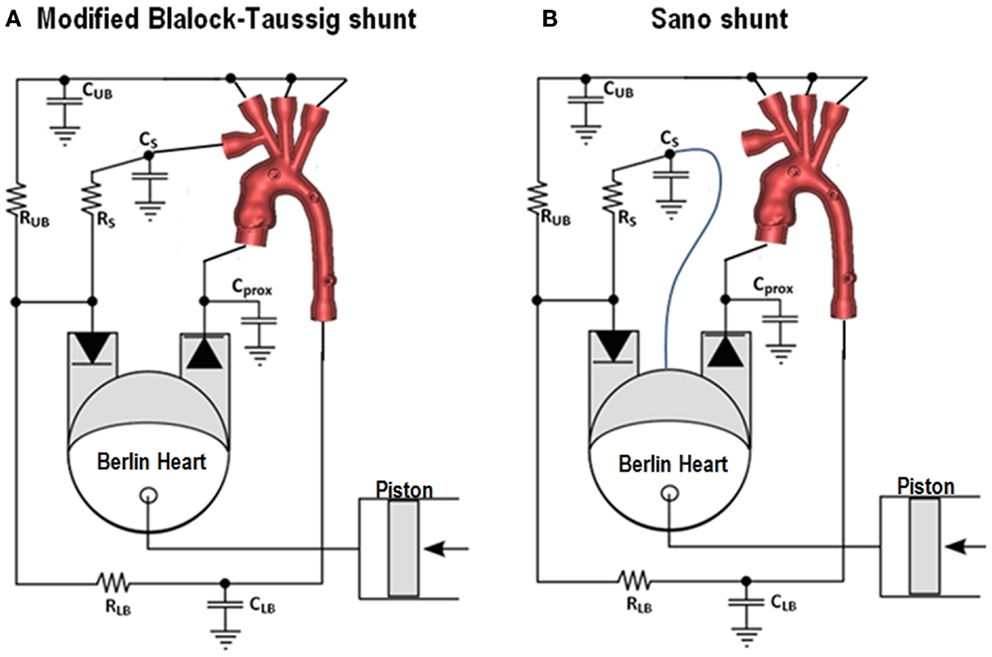 Frontiers | Modelling single ventricle physiology: Review of