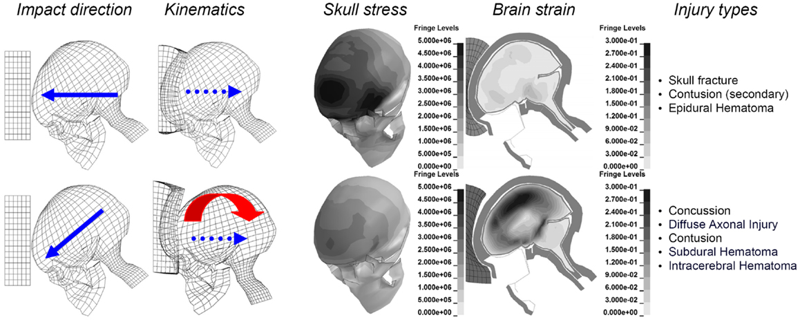 what are the impact of brain injuries Severe brain injury is associated with loss of consciousness for more than 30 minutes and memory loss after the injury or penetrating skull injury longer than 24 hours the deficits range from impairment of higher level cognitive functions to comatose states.