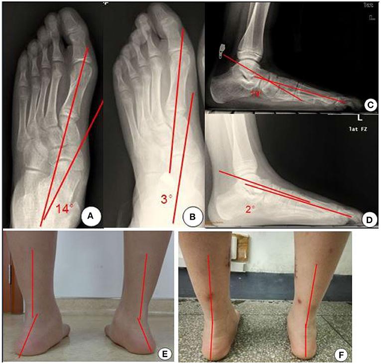 Feet gong li Gong Li: