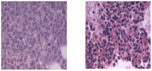 Figure 6 - Bone marrow from a multiple myeloma patient before and after Velcade®.