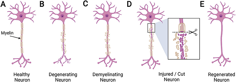 Figure 2 - (A) A normal, healthy myelinated neuron in an adult brain.