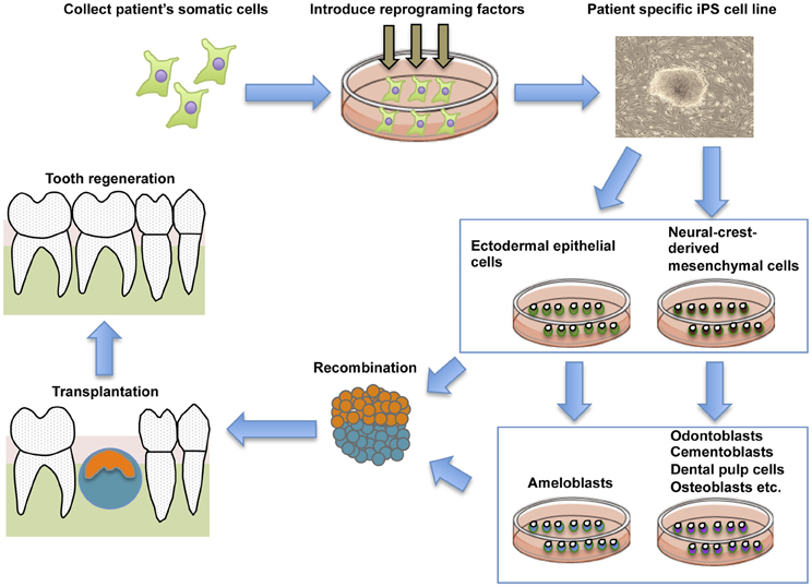 Frontiers | Stem cell sources for tooth regeneration