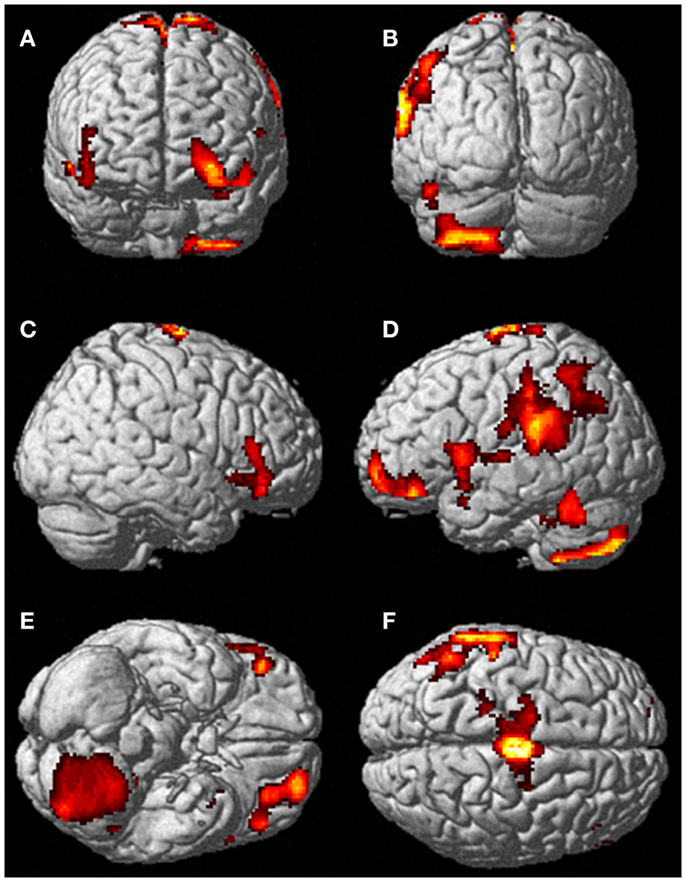 Frontiers | Voluntary Out-of-Body Experience: An fMRI Study