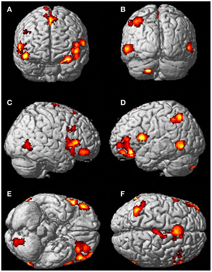 functional mri in mapping with Fmri Scans Brain on Chrt brain further Brain Science 3 How Do We Taste together with Brain Function Areas Structure Map moreover Bmjqs 2012 001712 further Brain Anatomy.