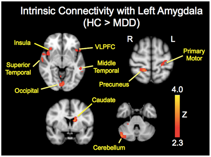 Frontiers reduced intrinsic connectivity of amygdala in adults frontiersin ccuart Images