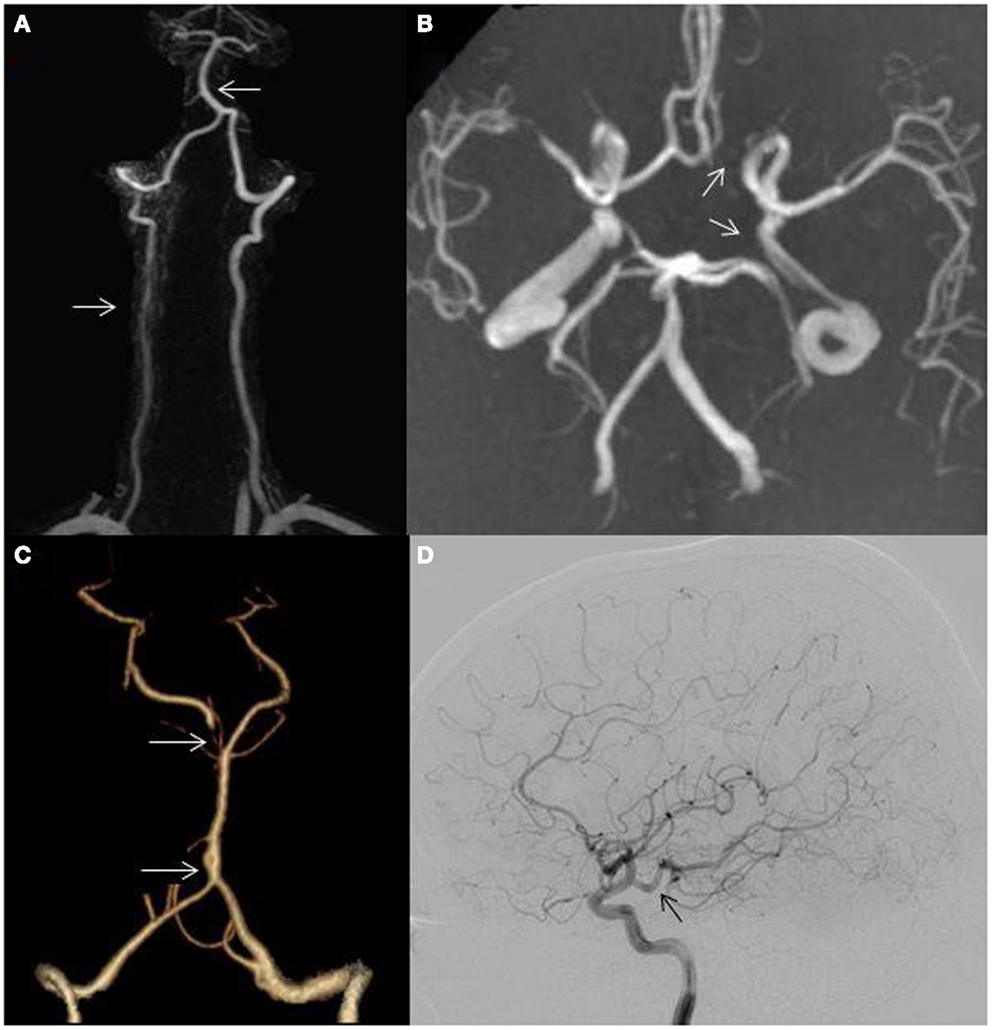Frontiers | Ischemic Posterior Circulation Stroke: A Review of ...