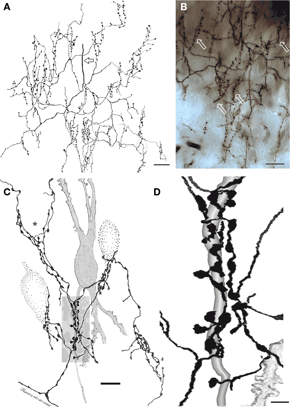 Frontiers chandelier and interfascicular neurons in the adult frontiersin figure 4 chandelier cell aloadofball Gallery