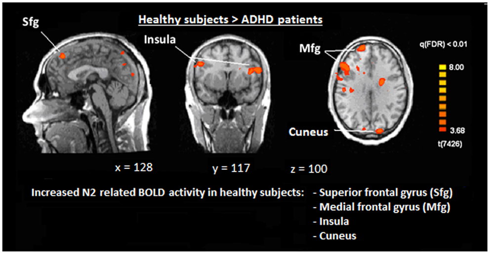 Mri Shows Brain Differences Among Adhd >> Frontiers Deficits During Voluntary Selection In Adult
