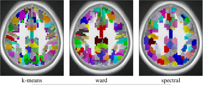 Frontiers | Which fMRI clustering gives good brain