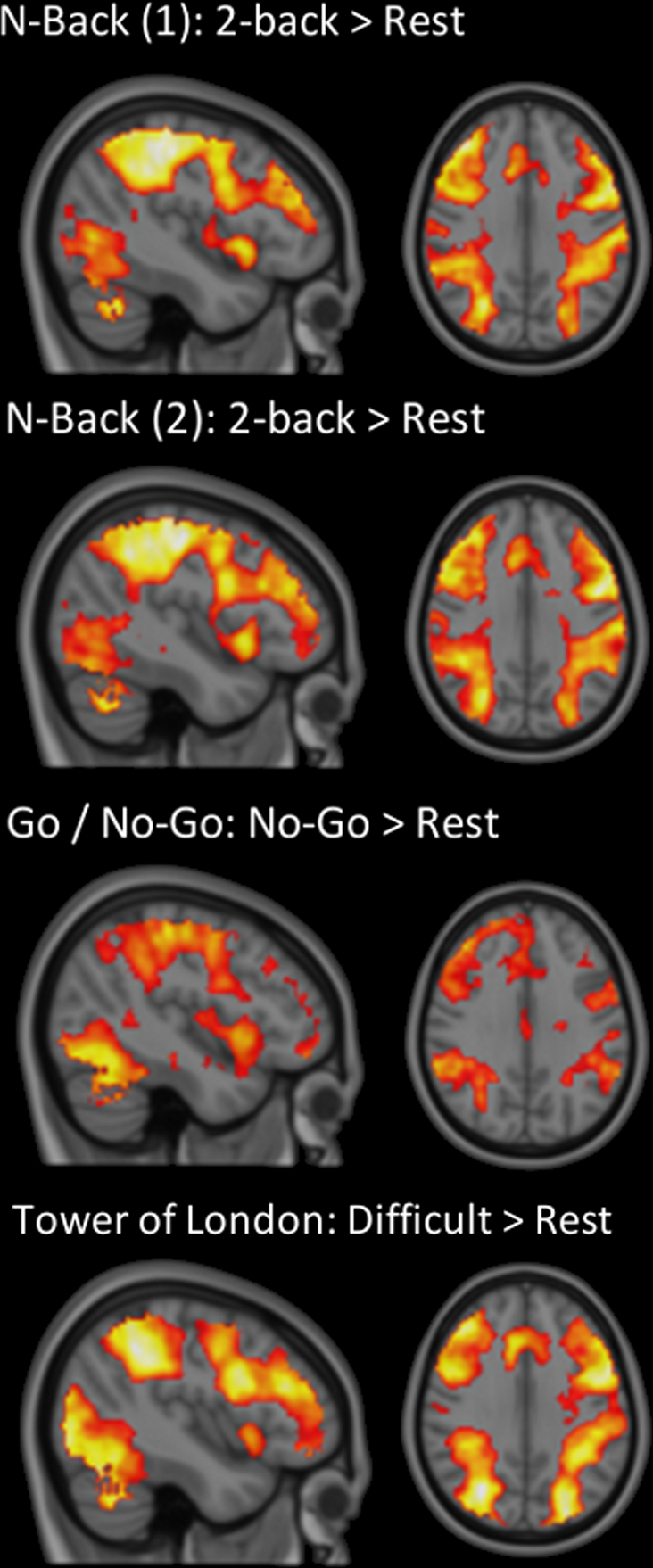 Frontiers | Executive Functions and Prefrontal Cortex: A