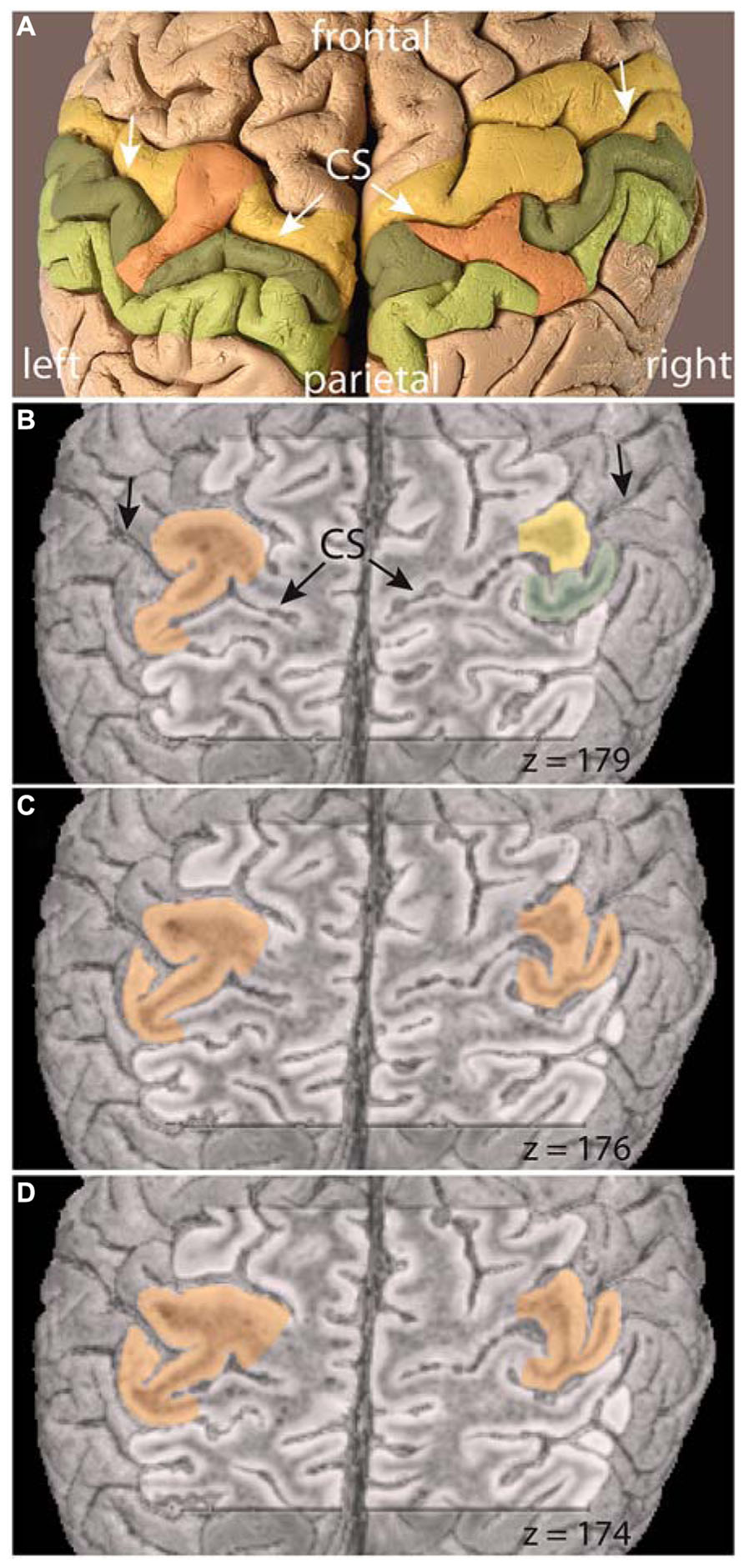 Frontiers   Revisiting a historic human brain with magnetic ...