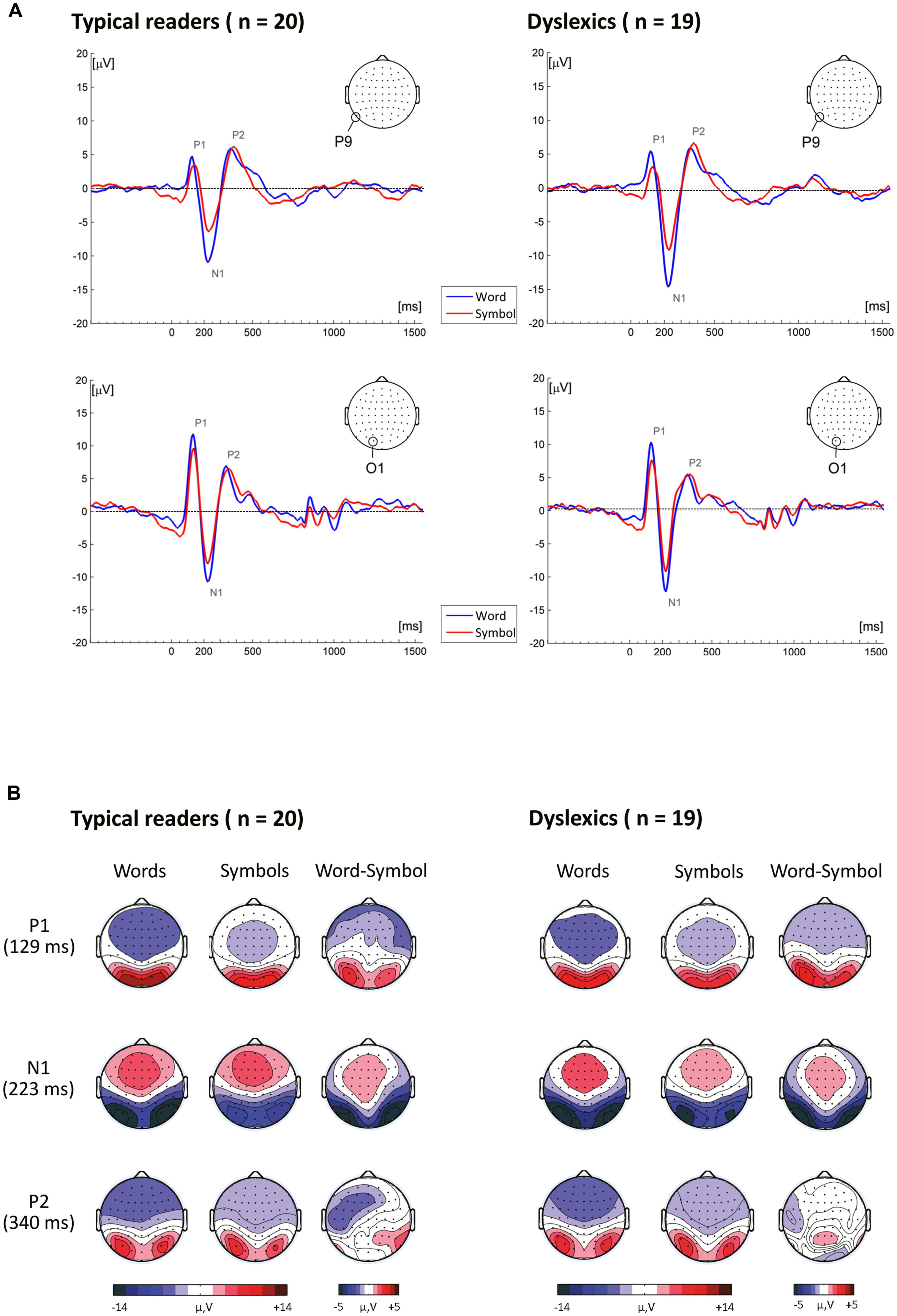 Frontiers brain potential analysis of visual word recognition in frontiersin biocorpaavc Image collections