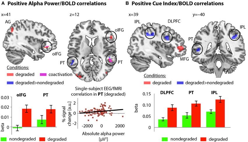 Frontiers simultaneous eeg fmri brain signatures of - Subject alpha cf ...