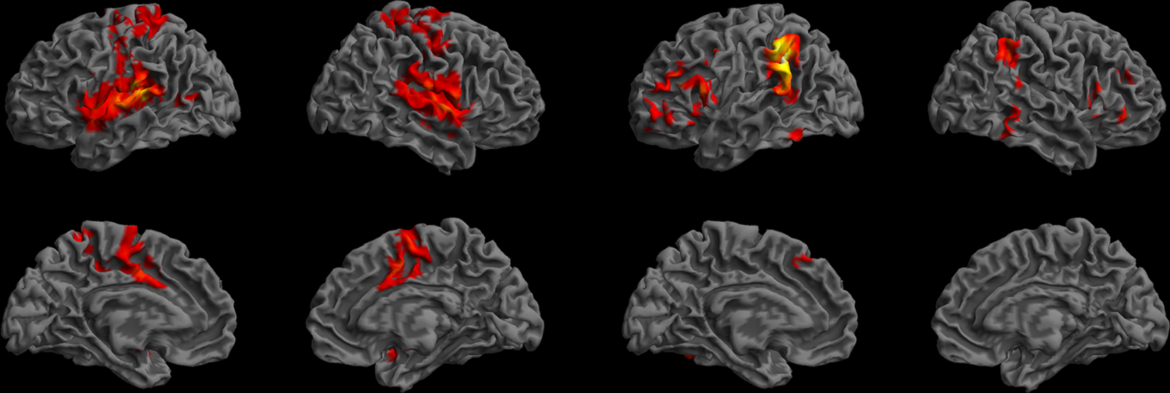 neural differences in native language comprehension Linguists regard speaking, signing, and language comprehension as primary faculties of language, ie, innate or inherent and biologically determined, whereas they regard reading and writing as secondary abilities.