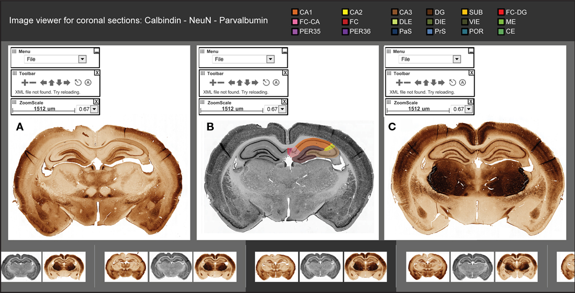 Frontiers | Digital Atlas of Anatomical Subdivisions and Boundaries ...